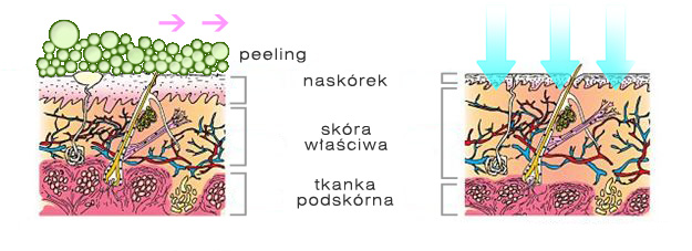 skin-peel-schemat.jpg
