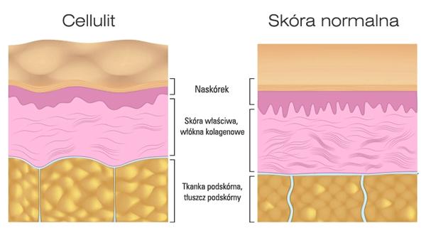 Struktura skóry normalnej i z cellulitem